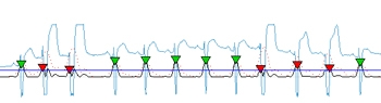 Figure 1.  A saturated signal showing distortion with its values clipped. The proposed algorithm can detect QRS even in signals like these.