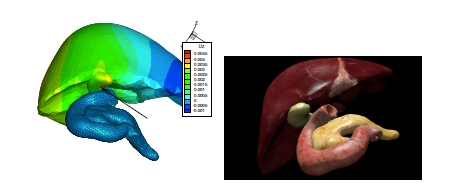 Figure 5. 3D renderings of a liver surface computed using PGD.