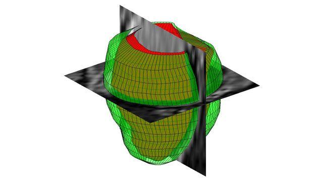 Procesamiento de imágenes 3D con MATLAB