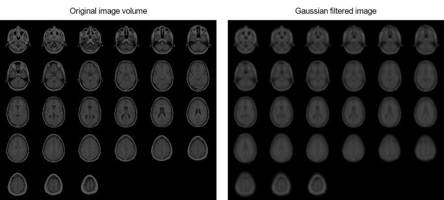 En este ejemplo se muestra cómo suavizar imágenes de resonancia magnética de un cerebro humano mediante el filtrado gaussiano 3D.