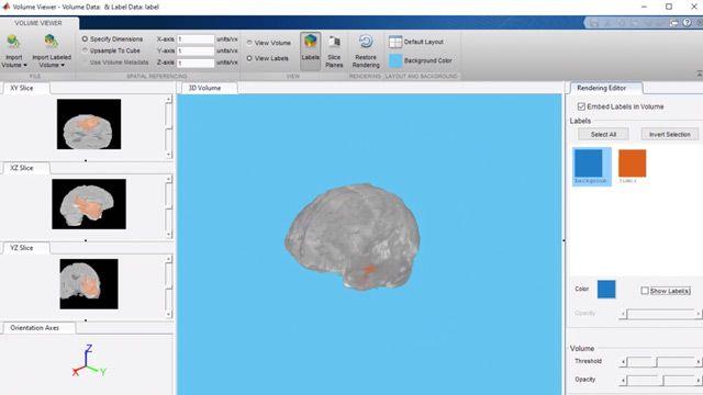 Segmente tumores cerebrales a partir de imágenes médicas 3D con una red neuronal U-Net.