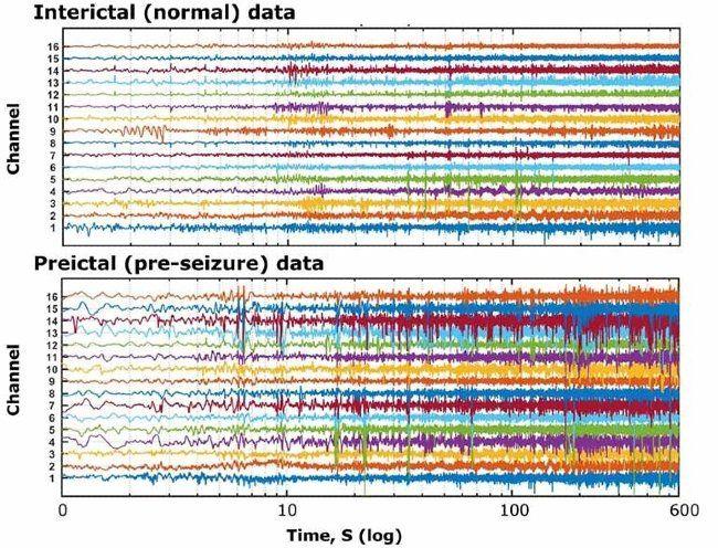 Múltiples canales de datos de señales correspondientes a registros de EEG obtenidos de un paciente epiléptico durante periodos normales y previos a las convulsiones.