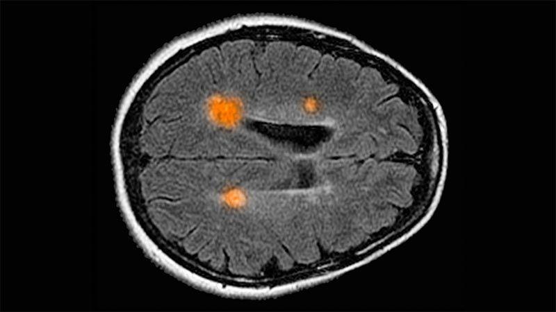 Mapas del cerebro humano