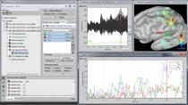 MathWorks and Brainstorm engineers will demonstrate the essential tools offered by Brainstorm to analyse and visualize multidimensional, complex datasets obtained from electrophysiological recordings, with an emphasis on functional brain imaging. We